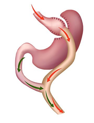 Gastric bypass stomach map